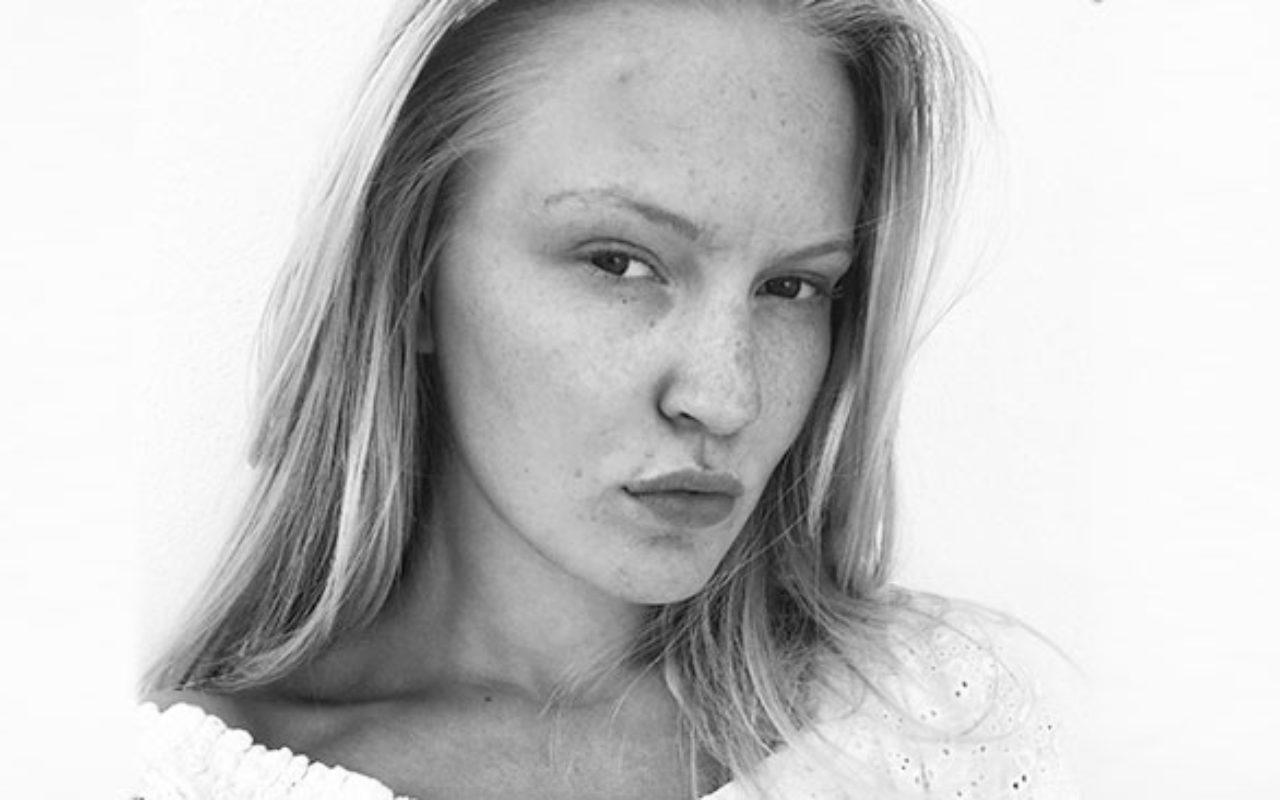 – Jeg sliter ikke lenger med acne